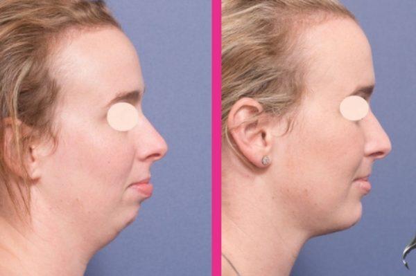 Genioplasty คืออะไร? – เสริมคาง ก่อนและหลังภาพถ่าย