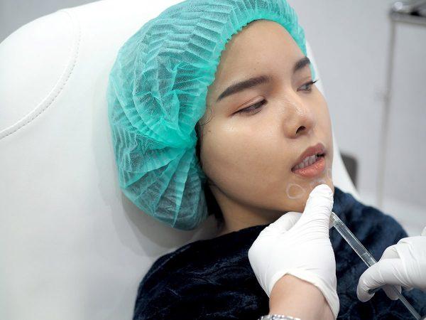 ถ้าฉีดฟิลเลอร์ไปแล้ว อยากเปลี่ยนเป็นผ่าตัดเสริมคางทำอย่างไร?