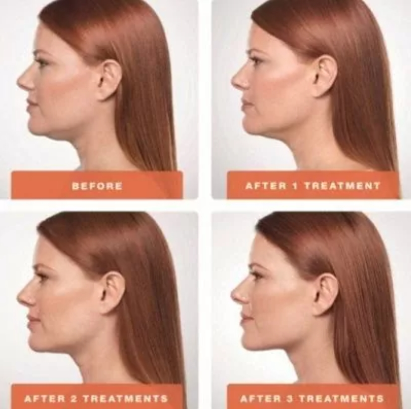 Kybella Treatment สำหรับคางสองชั้น